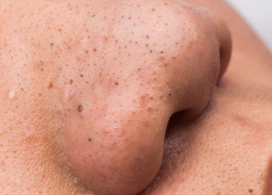 Unreine Haut was nun?
